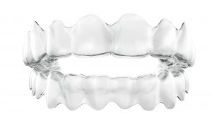 How much do clear braces cost in the UK